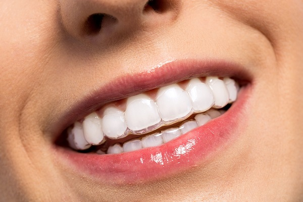 Invisible Braces for Adults Ottawa