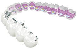 harmony-orthodontic-system